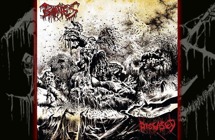 bones-diseased